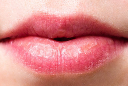Suchość w jamie ustnej – czego to oznaka?